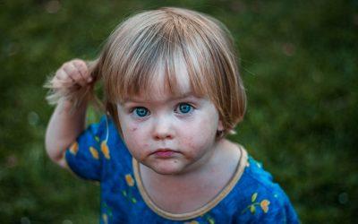 Ivermectina en dermatitis perioral