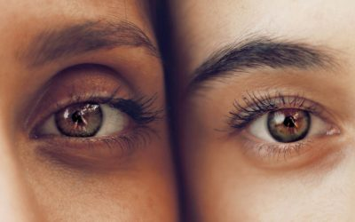 Ciclosporina eficaz para síndrome de ojo seco